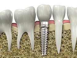 dental Implant digital rendering