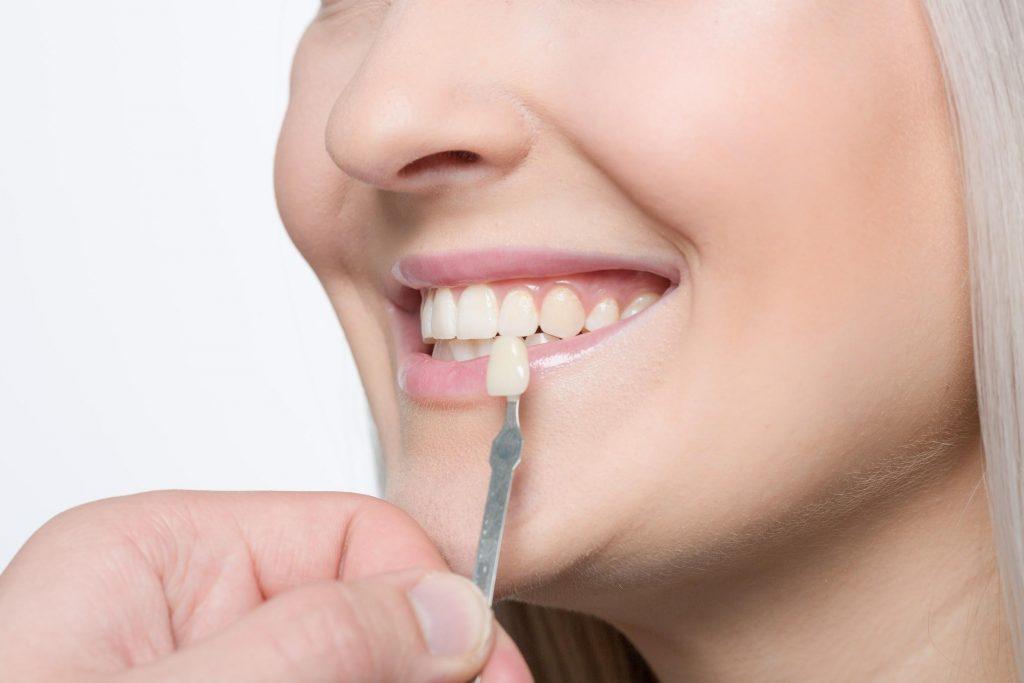 teeth color checking for veneers